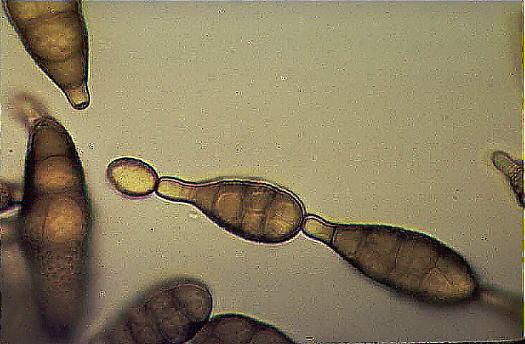 Deuteromycota asexual
